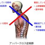 【高知】「猫背」「肩こり」「背中・首のしんどさ」「頭痛」 アッパークロス症候群