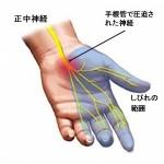 手の痺れ、痛み 首の問題?手根管症候群?