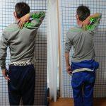 ケース⑩ 40代後半男性 7〜8年前から続く首・背中・腰の痛み 先天性右肩関節可動不全