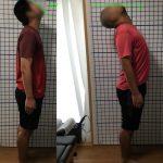 ケース【12】 高校生 車との接触事故に起因する首の痛み、頭痛、めまい
